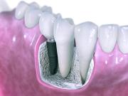 Zahnwurzel, Titan Implantat, Zahnarztpraxis Leistung