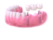 Zahnersatz, Freiendbrücken, Implantat Vorteil